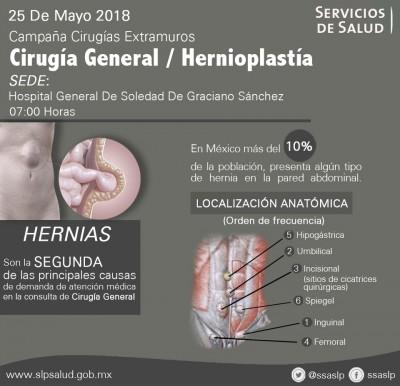 JORNADA DE HERNIO PLASTIAS CON MALLA Y ANESTESIA LOCAL